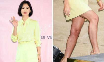 Song Hye Kyo lộ đôi chân xấu, dân mạng đồn đoán chuyện mang bầu