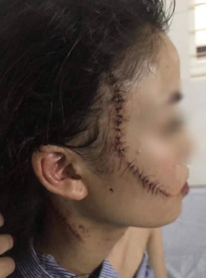 Thiếu nữ 18 tuổi bị rạch mặt chằng chịt vì mâu thuẫn từ 1 năm trước? - 2