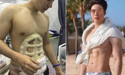 Tập hoài không lên cơ bụng 6 múi, anh chàng quyết định phẫu thuật thẩm mỹ luôn cho nhanh
