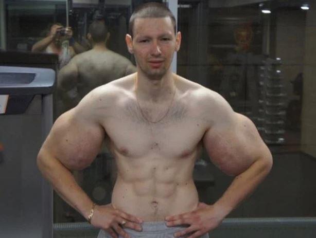 Chàng trai tiêm dầu vào cơ bắp cầu cứu vì nhiễm trùng