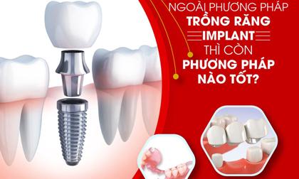 Ngoài trồng răng Implant thì còn phương pháp nào tốt?