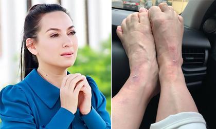 Vội vã chạy show, Phi Nhung bị ngã bầm rập khiến fan lo lắng