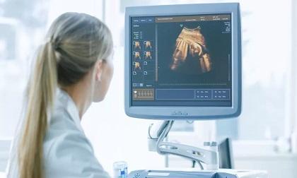 Lý do không nên siêu âm thai 4D nhiều mà bà bầu nào cũng nên biết