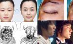Top 6 phương pháp phẫu thuật thẩm mỹ được ưa thích nhất