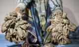 'Rễ cây' mọc chi chít trên cơ thể người đàn ông