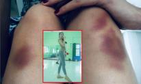Thủy Tiên ngã chấn thương lưng khi tập vũ đạo, nằm không được đi không xong