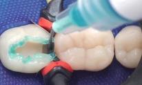 Cứu tinh răng! Các nhà khoa học đã phát triển một 'gel làm đầy' để tái tạo răng trong vòng 48 giờ