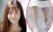 'Ác nữ' Kim Gyu Ri lộ đầu gối thâm và đôi chân đầy 'hoa gấm'