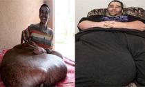 Mắc bệnh lạ, có khối u, tinh hoàn nặng cả trăm kg