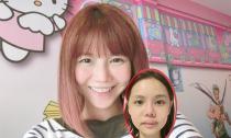 Hot girl Singapore công khai loạt ảnh sưng phù do phẫu thuật thẩm mỹ