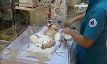 Vết thương của bé sơ sinh bị văng khỏi bụng mẹ đang nhiễm trùng nghiêm trọng