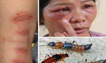 Điều trị viêm da do tiếp xúc với kiến ba khoang