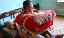 Cô gái 10 năm ôm gối ngủ ngồi