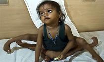 Những đứa trẻ sinh ra với bốn chân, bốn tay ở Ấn Độ