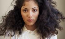 Khám bệnh qua biểu hiện của tóc