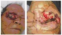 Bác sĩ kinh hãi phát hiện ổ giòi trong mắt bệnh nhân