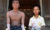 Cận cảnh hai cha con... người rắn ở Quảng Nam