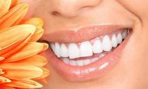 Tẩy trắng răng 'thần tốc' với bột nở