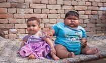 Aliya Saleem - cô bé 10 tháng tuổi có thân hình của trẻ 6 tuổi
