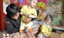 Hai bé rụng ngón chân, ngón tay vì mắc bệnh quái ác
