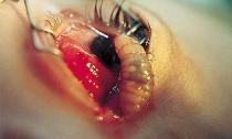 Những hình ảnh khủng khiếp về ký sinh trùng trên cơ thể người