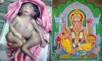 Em bé 8 chi được tôn thờ như một vị thần