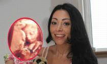 Kinh ngạc vì phát hiện 'thú lạ' khi siêu âm thai nhi