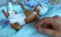 Cảm động với hành trình chuyển biến diệu kỳ của em bé sinh non 4 tháng tuổi