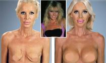 Nữ diễn viên Hollywood bị virus ăn mất ngực
