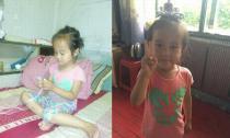 Bé 4 tuổi đã bị khối u buồng trứng ác tính