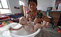 Cảnh 'da bọc xương' của cậu bé sinh ra không có hậu môn