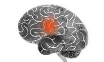 Dấu hiệu thường gặp của đột quỵ bạn không nên bỏ qua