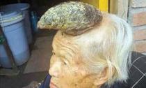 Cụ bà mọc 'sừng' trên đầu dài 13cm
