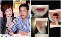 Dương Yến Ngọc bị chồng bạo hành thương tích đầy mình