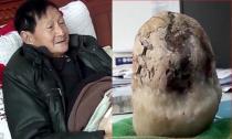 Cụ ông 70 tuổi có sỏi mật lớn bằng quả dưa