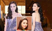 Hoa hậu Kỳ Duyên tiếp tục dính nghi án thẩm mỹ vì chiếc cằm dài và nhọn hoắt