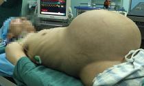Người đàn ông mang khối u nặng hơn 15kg ở bụng như chửa