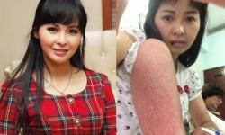 Ca sĩ Trang Nhung bị sốt xuất huyết nghiêm trọng