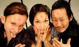Trán phồng - Mốt làm đẹp kỳ dị đang nổi ở Nhật