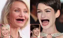 Phì cười khi sao Hollywood bị móm