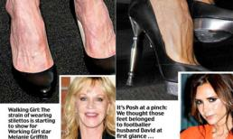 Sao US và những bàn chân biến dạng vì giày cao gót