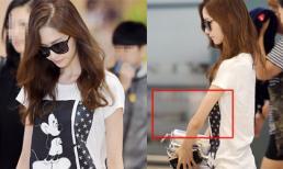 Hết bị chê chân vòng kiềng, Yoona lại bị 'soi' tay gầy nhẳng