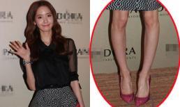 Yoona lại 'mất điểm' vì lộ chân cong và đầu gối củ lạc