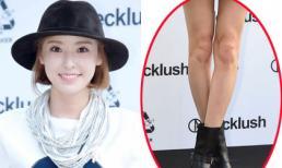 Lee Da Hee lộ chân tong teo và đầu gối xấu xí