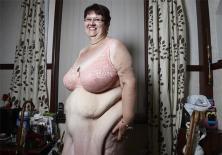 Kinh hoàng những bộ da thừa do giảm béo