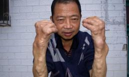 Bị nổi u chi chít vì nhiễm kim loại nặng