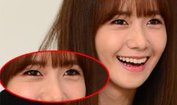 Yoona lộ bọng mắt và nếp nhăn tại sự kiện