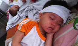 Cách chăm sóc trẻ mắc bệnh sởi