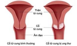 Một vài triệu chứng nhận biết ung thư cổ tử cung