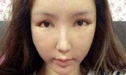 Thiếu nữ biến dạng khuôn mặt vì lạm dụng thẩm mỹ